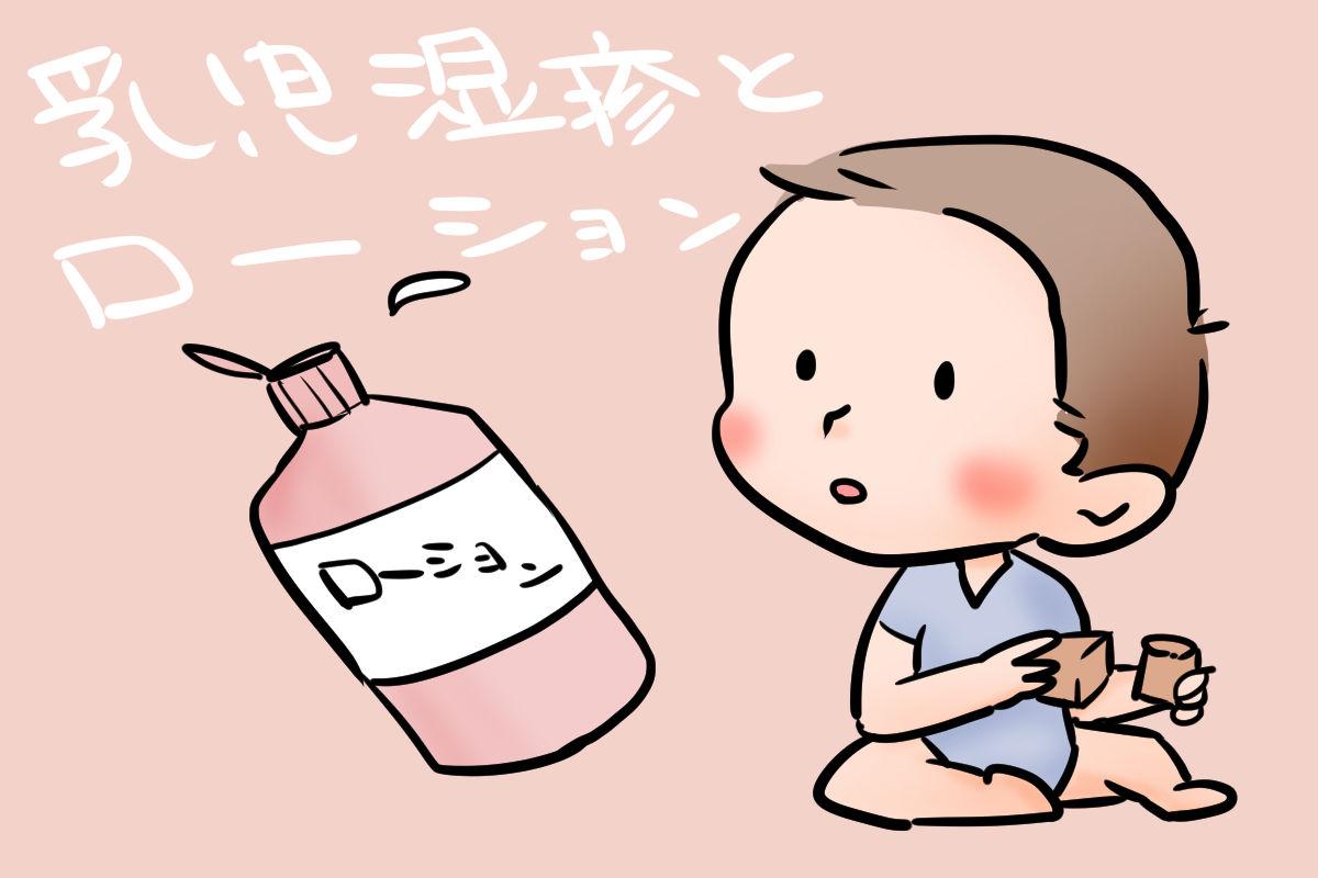 乳児湿疹の時はローションを塗るべき?